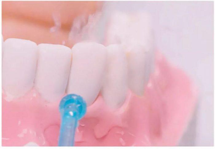 SOOCAS W3 סילונית שיניים נטענת